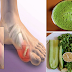 How To Remove Dangerous Uric Acid Crystals From Your Body To Prevent Gout And Joint Pain