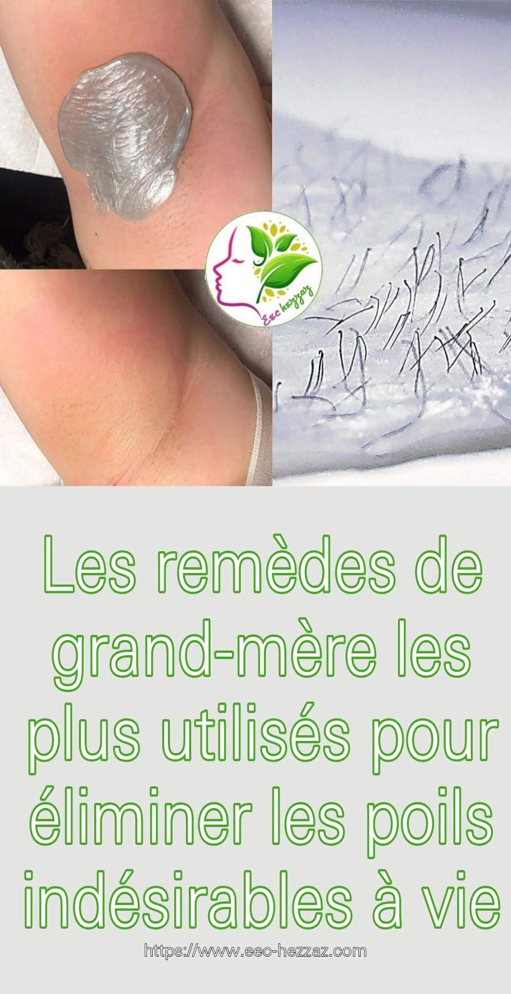 Les remèdes de grand-mère les plus utilisés pour éliminer les poils indésirables à vie