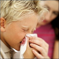 nose bleeding, bleeding of the nose, nosebleed,The main causes of epistaxis,