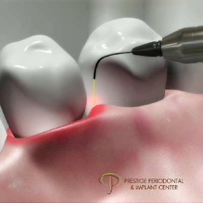 trend of laser services in dental sector