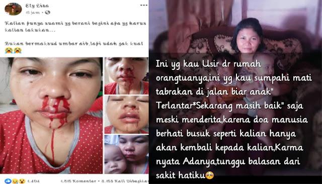 Postingan Istri Di Pukuli Suami Hingga Berdarah-Darah Viral Di Sosmed