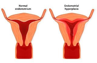 Obat Hiperplasia Endometrium (Penebalan Dinding Rahim), Gejala dan Penyebab