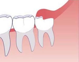 dents de sagesse infection symptomes