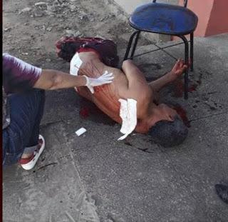 Violência em Mari: Homem sofre tentativa de homicídio no Conjunto São Sebastião