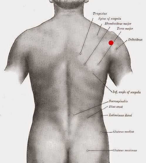 Infiltración posterior del hombro. Glenohumeral