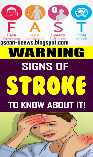 Warning Signs of Stroke to Know About