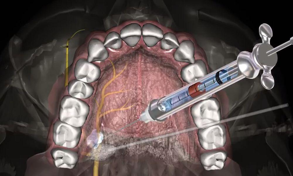 Anestesia Dentária