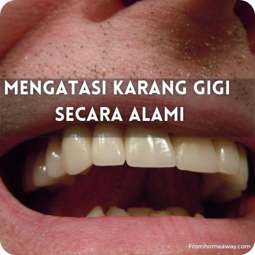 Mengatasi Karang Gigi Secara Alami