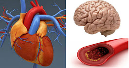 Save Your Heart,KIdney And Brain: Clean Your Arteries Using Only 3 Ingredients