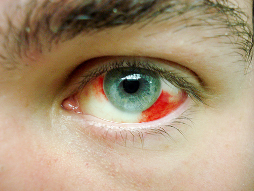 a patient's guide to subconjunctival hemorrhage - eyedolatry, Skeleton