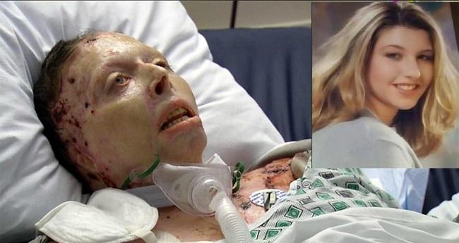 Άντρας έκαψε ζωντανή την 33χρονη σύντροφο του κι εκείνη κατέθεσε εναντίον του στο δικαστήριο από τον «τάφο» της
