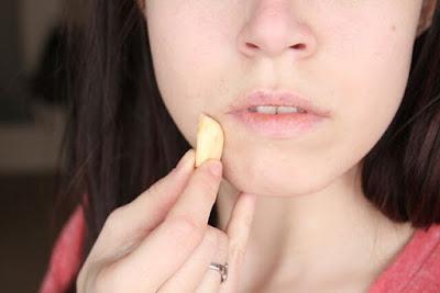 mengobati Jerawat Dengan bawang putih