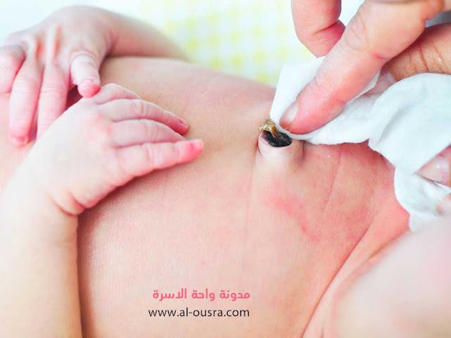 أسباب رائحة السرة الكريهة عند الرضع