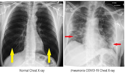 Normal and Pneumonia Chest X-ray Images
