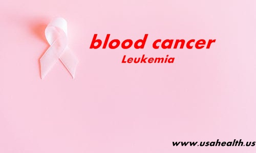 Leukemia is a type of cancer that forms in the tissues responsible for the production of blood cells, which includes the bone marrow and lymphatic system.