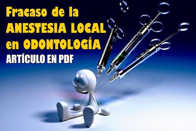 PDF: Fracaso de la Anestesia Local en Odontología