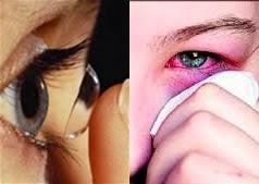 Las amebas Comen Globos del ojo a usuario de lente contacto