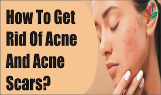 How To Get Rid Of Acne And Acne Scars?