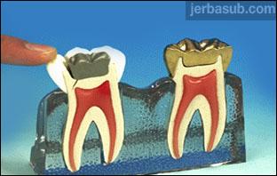 اخصائي جذور اسنان في جده