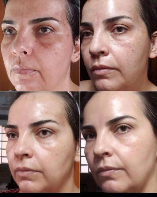 3 recettes à base des ingrédients 100% naturels alternatives au traitement de Botox
