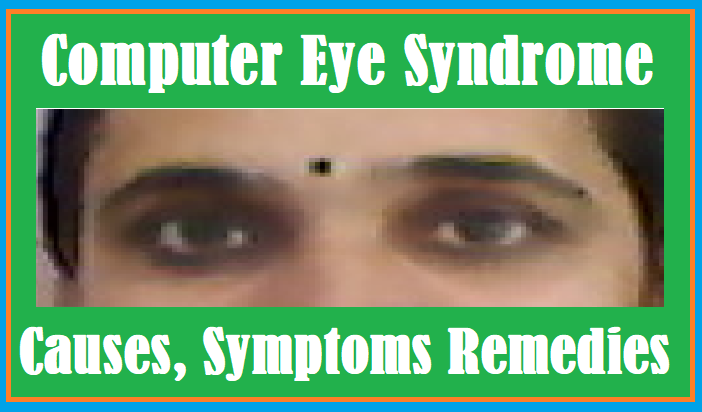 http://www.wikigreen.in/2020/07/causes-symptoms-remedies-digital-eye.html