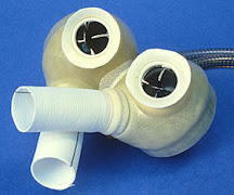 The Jarvik 7 - The First Artificial Heart