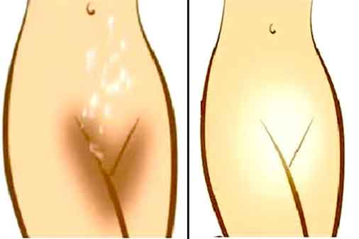 How To Lighten Private Parts Home Remedies