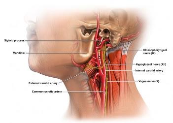obat herbal sakit leher sebelah kiri
