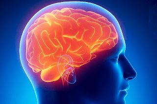 ¿Qué es el alzhéimer?