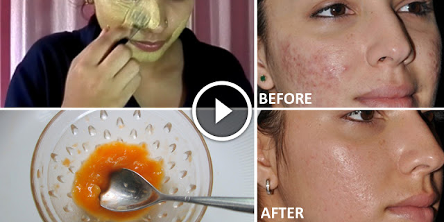How To Remove Acne And Pimples With Natural Ingredients Made Mask!
