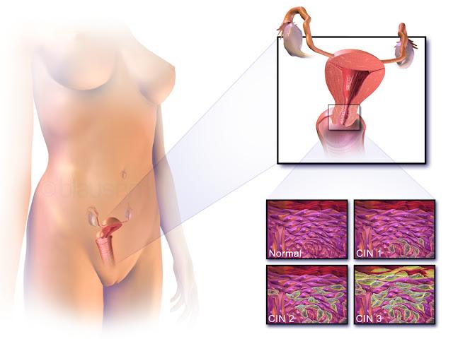Penyebab Kanker Serviks Dan Ciri-Cirinya