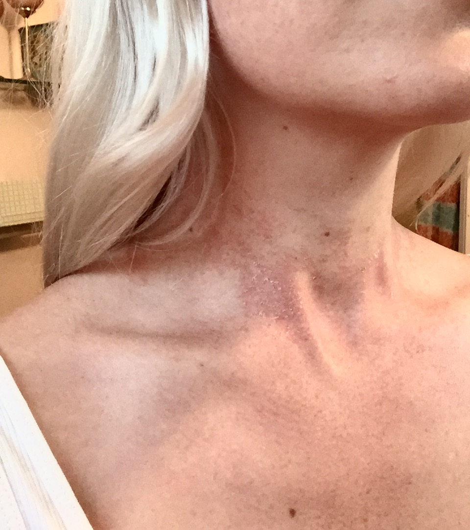allergisk reaktion schampo
