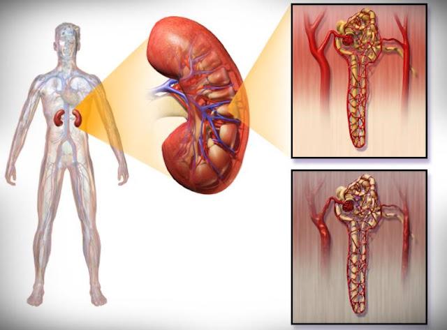 Ciri-Ciri Penyakit Ginjal Sejak Awal Hingga Kronis