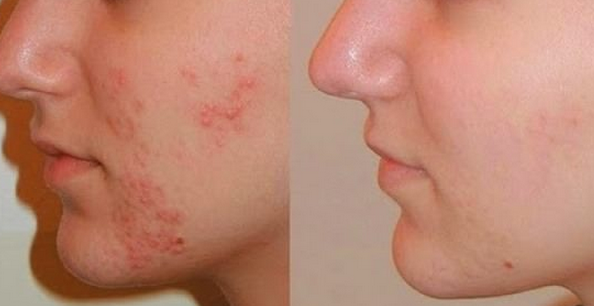 Instructions to Treat Acne Problems For Oily White