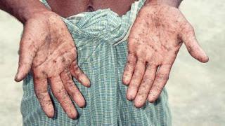 Enfermedades Causadas por Plomo.1