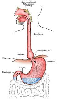 Acid Reflux Constant Sore Throat 2