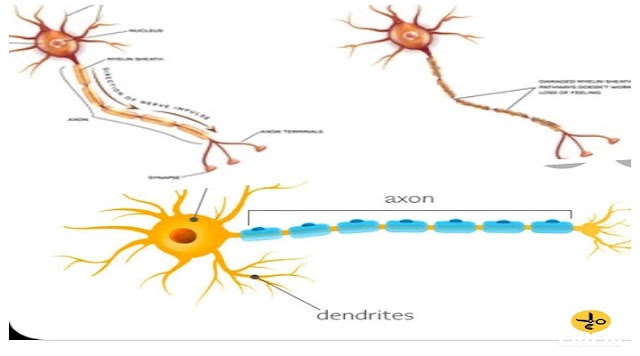 Neurological diseases and their treatment and precautionary diet - (Causes of neurological disorders)