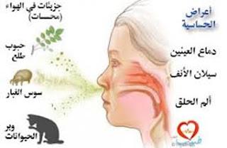 الأنف,تحسس,حساسية,التهاب