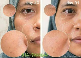 Testimoni Youth Skincare 1