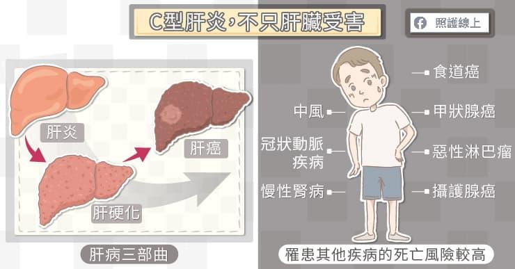 C型肝炎,不只肝臟受害!
