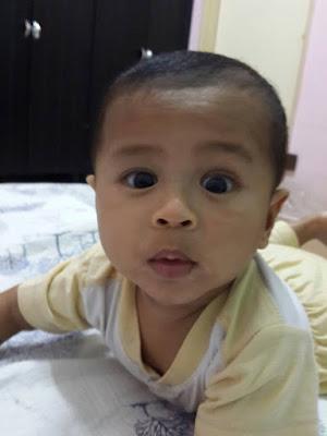 eczema pada bayi