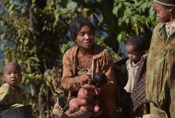 Ngeri ! Penyakit Aneh Landa Myanmar, 40 Anak-anak Tewas