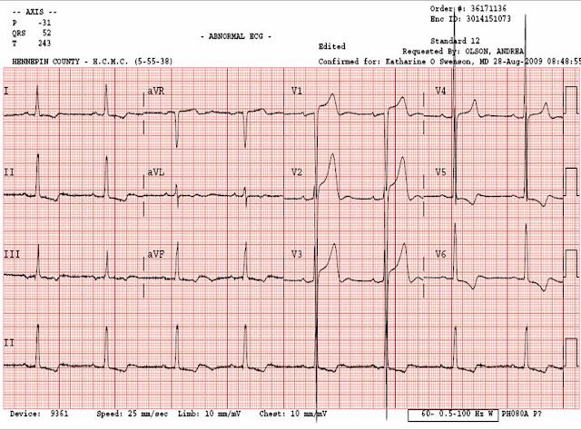Dr Smith S ECG Blog