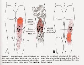 Dor no quadril Dor atrás da coxa, Dor ciática - Músculos Isquiotibiais e Bíceps femoral