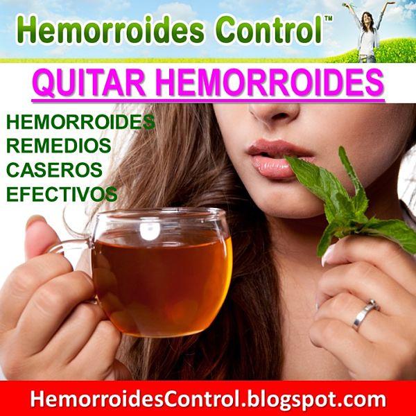remedios naturales para hemorroides externas
