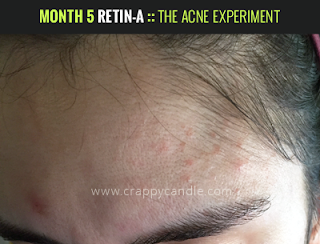 Retin-A Irritation (Month 5) :: The Acne Experiment