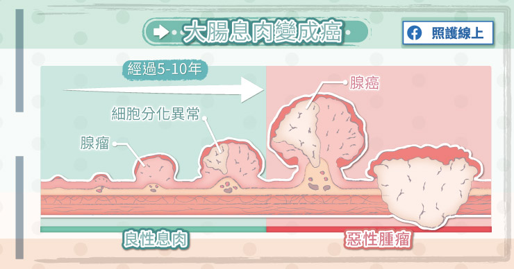 大腸息肉會變成大腸癌嗎?