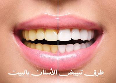 طرق تبييض الأسنان بالبيت