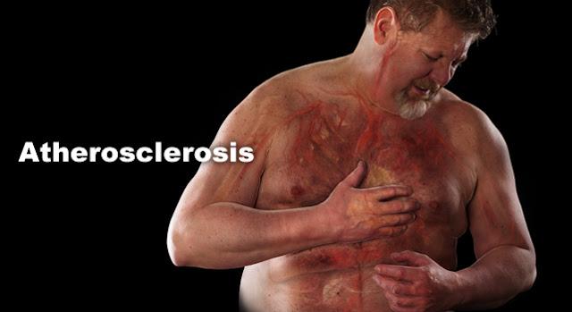 petua bersihkan kolestrol pada jantung