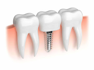 Chi phí cấy ghép implant là bao nhiêu ?